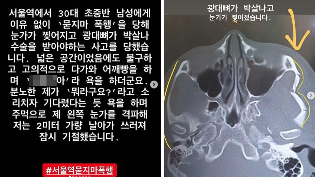 """서울역서 묻지마 폭행 당한 30대 여성...""""CCTV 없어"""""""