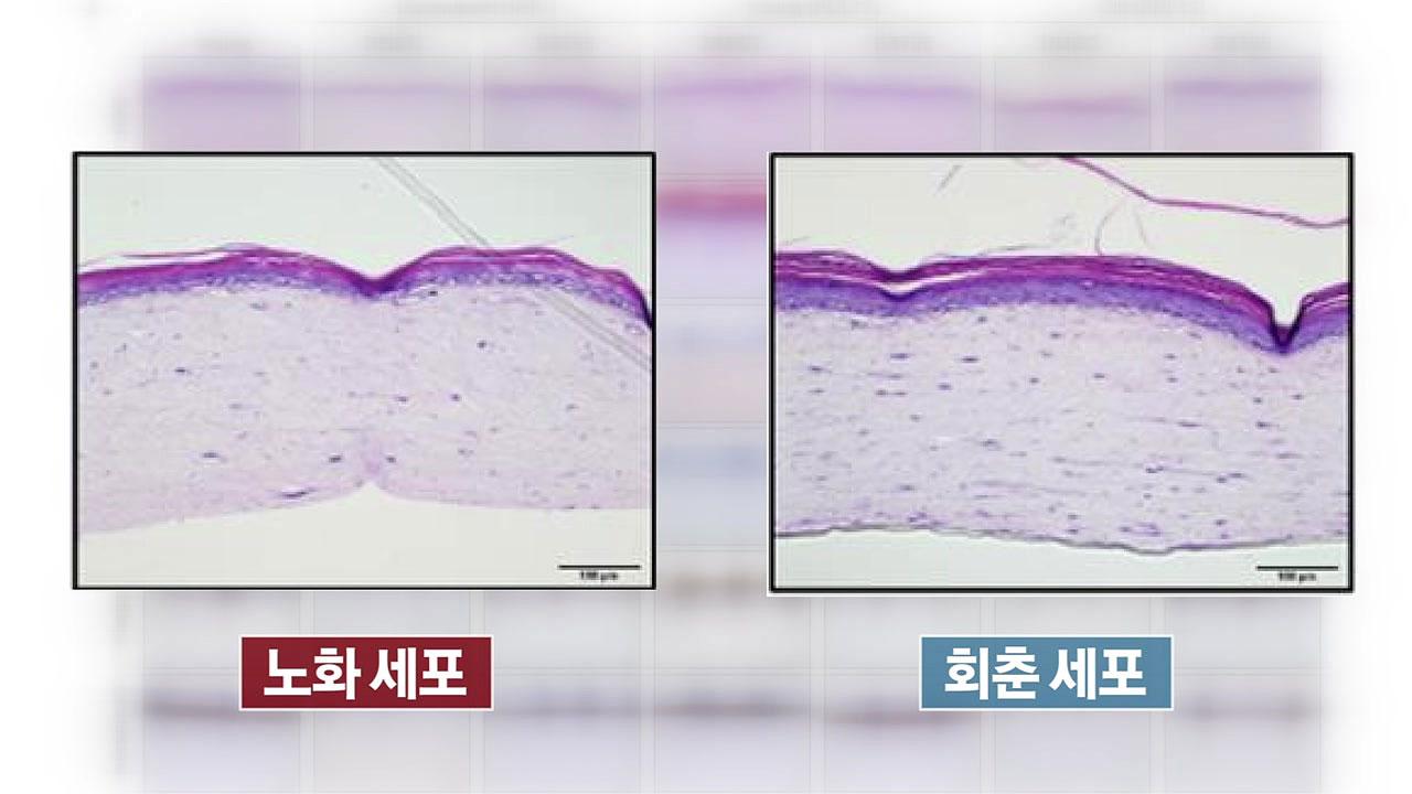 노화 세포를 젊은 세포로 바꾸는 '회춘 기술' 찾았다