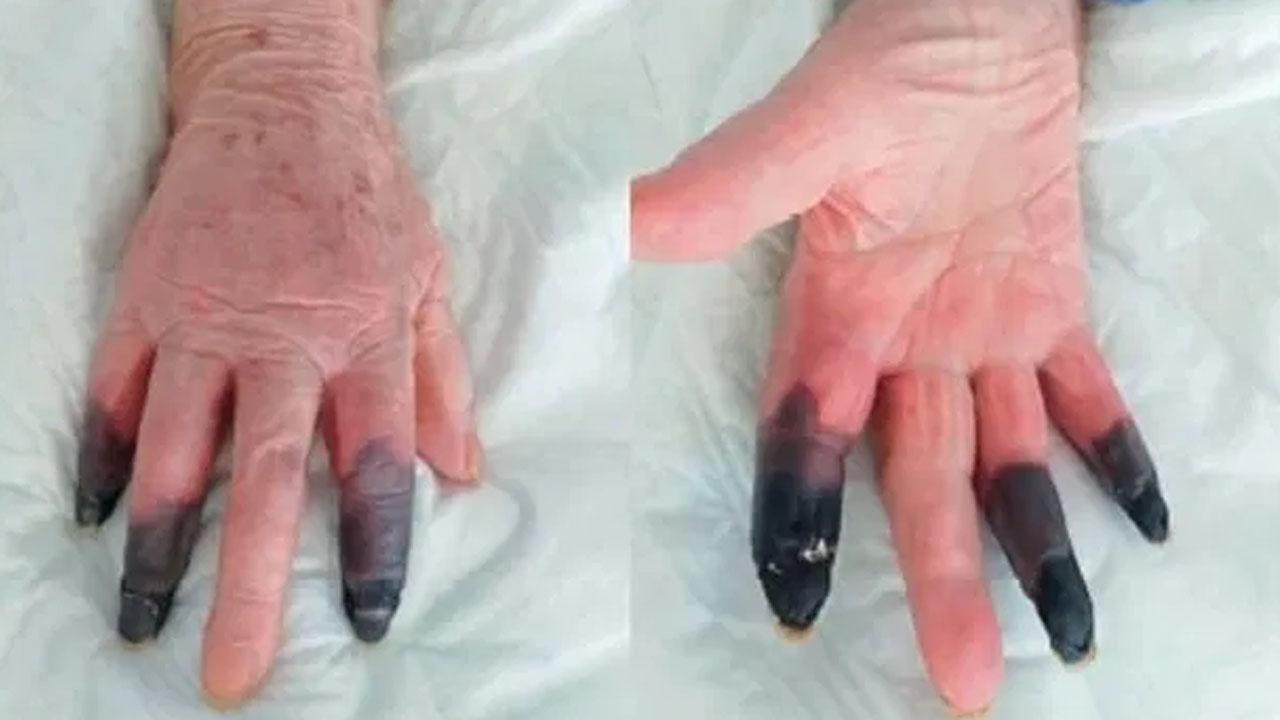 [국제]COVID-19로 이탈리아에서 세 손가락 괴사 절단