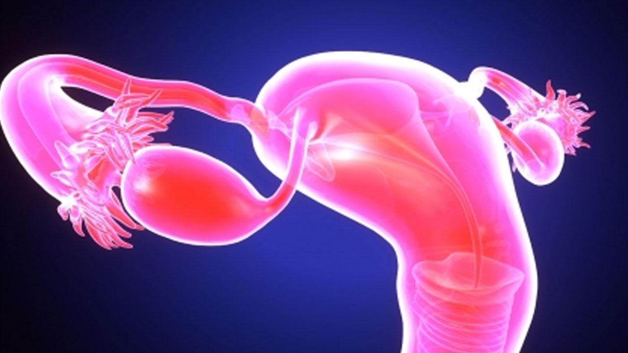 10대 여성 '다낭성난소증후군' 발병률 증가...검진 필수