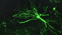 손상된 뇌 회복 방해하는 물질 발견...치료 길 열었다