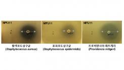 '피부 유해 세균' 억제하는 신종 유산균 발견돼