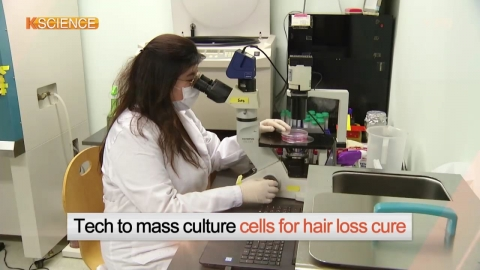 [K-SCIENCE] Cells for Hair Loss Cure